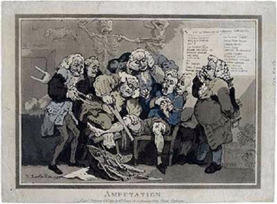 Rowlandson's amputation